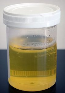 dog-urine-sample